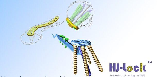 Plat Fiksasi Internal untuk bagian Bahu & Skapula merek Heng-Jie