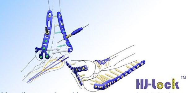 Bone fracture internal fixation plate for Elbow & Radius